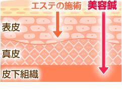 皮膚断面図。表皮までのエステと違い美容鍼は皮下組織まで届けます