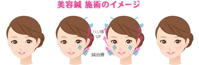 美容鍼ビフォーアフターのイメージ